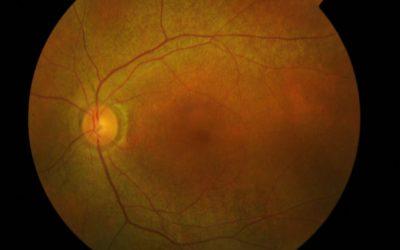 Corso di malattie oculari ereditarie
